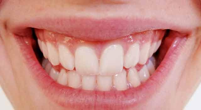 ¿Cuándo hacerse una limpieza dental?